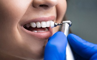 Closeup of smile being polished by Reno dentist