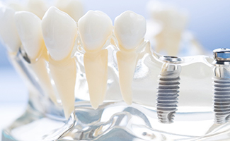 dental implant posts