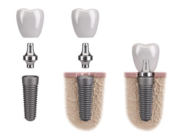 side view of dental implant