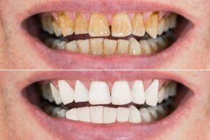"A ""before"" and ""after"" photo comparison of yellow, decaying teeth and white, healthy-looking teeth"