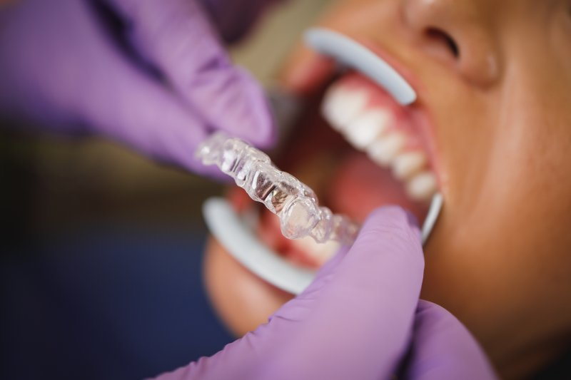 Dentist putting Invisalign trays on patient